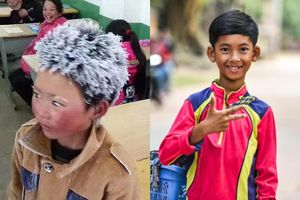 'Cậu bé băng giá' và những đứa trẻ đổi đời nhờ mạng xã hội