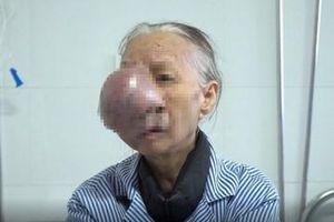 Phẫu thuật thành công khối u che nửa mặt cụ bà