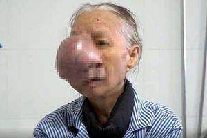 Người phụ nữ bị khối u khổng lồ hiếm gặp che kín nửa mặt