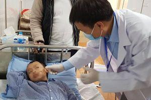 Hà Nội: Bé trai 8 tuổi bị chó béc giê cắn rách mặt và môi