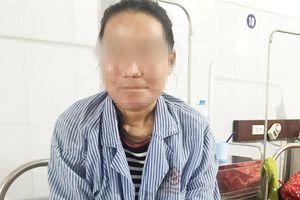 Người phụ nữ bị lở loét mặt do dị ứng kem trộn