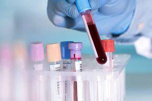 Hà Nội gặp khó trong xét nghiệm COVID-19, đề nghị Bộ Y tế hỗ trợ