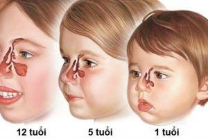 Nguyên nhân gây viêm xoang ở trẻ