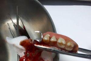 Cứu sống người bệnh nuốt cả hàm răng giả vào thực quản