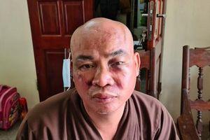 Sư thầy tại Hải Phòng bị hành hung vỡ xương mũi