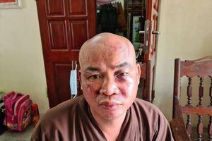 Sư chùa Thiên Mụ ở Hải Phòng bị hai người đánh vỡ xương mũi