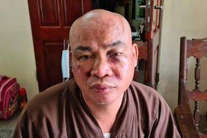 Vụ sư chùa Thiên Mụ trình báo bị đánh vỡ xương mũi: Chủ tịch xã nói gì?