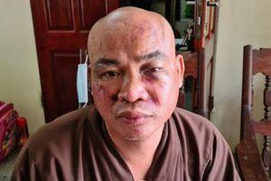 Hải Phòng: Sư chùa bị đánh trọng thương và mất tài sản