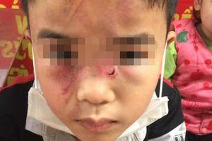Bé 7 tuổi bị bố đánh bầm tím khắp người