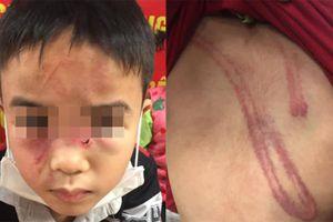 Xác minh thông tin bé trai 7 tuổi bị cha bạo hành tại Hà Nội