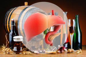 Bảo vệ gan trước tác hại của bia rượu dịp Tết