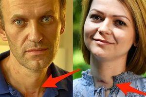 Nga mở lại điều tra vụ Navalny ở OPCW