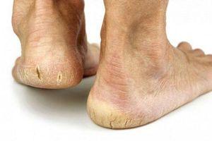 5 bước đơn giản hết ngay nứt nẻ gót chân