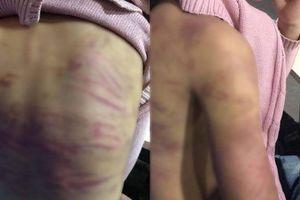 Điều tra nghi án bé gái 12 tuổi bị mẹ đẻ và 'cha dượng' bạo hành