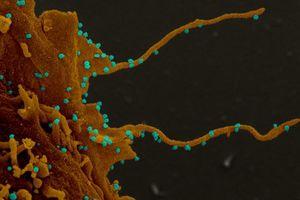 Con người có thể trở thành thây ma khi bị nhiễm virus SARS-CoV-2 ở đời thực?