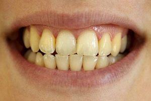 Bí quyết giúp răng không bị tình trạng ố vàng