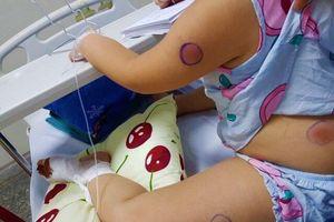 Bé gái 6 tuổi nhiễm vi khuẩn 'ăn thịt người' sau khi bị gà mổ vào chân