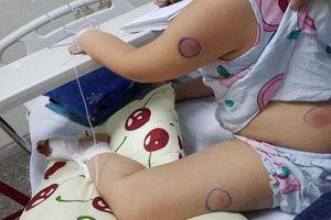 Bé gái Quảng Bình nhiễm 'vi khuẩn ăn thịt người' sau khi bị gà mổ vào chân
