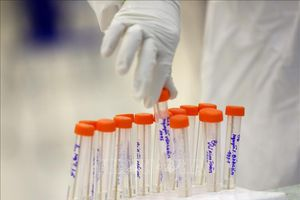 Người nhập cảnh vào An Giang phải tự chi trả chi phí xét nghiệm SARS-CoV-2