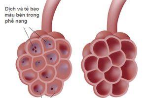 Bài thuốc hỗ trợ trị nhiễm trùng ở phổi