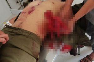 Nổ mìn tự chế, 7 người bị thương