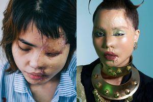 Cô gái bị tạt axit xuất hiện trong bộ ảnh nghệ thuật