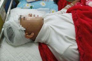 Xem xét khởi tố vụ án nam sinh bị đập gậy sắt vào đầu