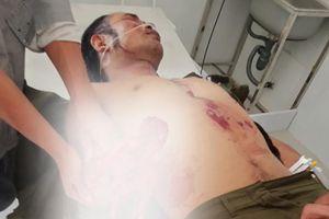 Bị thương nặng do tự chế mìn đánh cá tại tỉnh Lâm Đồng