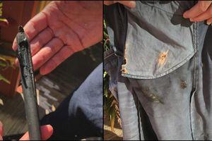 Apple bị kiện đòi bồi thường vì iPhone phát nổ trong túi quần