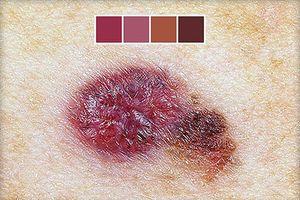Xem vị trí, hình dạng nốt ruồi phát hiện ung thư da nguy hiểm