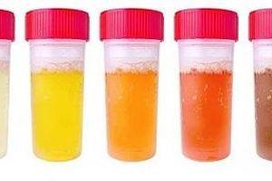 Màu nước tiểu: 5 cảnh báo cần đề phòng