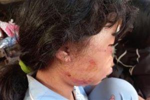 Đánh ngất nữ sinh trong lô cao su: Tình tiết bất ngờ