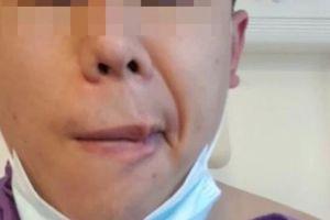 Người đàn ông liệt mặt sau khi được tiêm vaccine của Trung Quốc