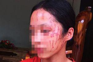 Bênh em, nữ sinh bị bạn cào rách mặt: 'Bắt tay rồi'