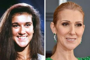 15 người nổi tiếng đã thay đổi như thế nào sau khi 'nâng cấp nụ cười'?