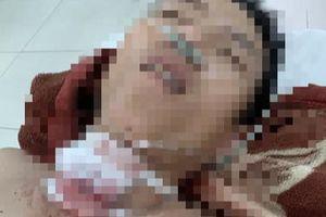 Án mạng kinh hoàng ở Quảng Nam: Công an túc trực tại bệnh viện phòng bị can tự tử