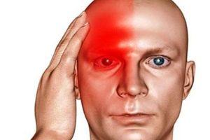 7 dấu hiệu nguy hiểm từ những cơn đau đầu bất thường và cách giải quyết