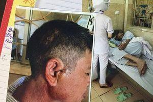 Người đàn ông bị hai bố con hàng xóm hành hung đến trọng thương