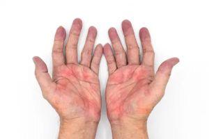 Dấu hiệu trên bàn tay cảnh báo bệnh gan