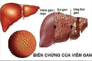 Làm gì để bảo vệ cơ thể khỏi viêm gan B?