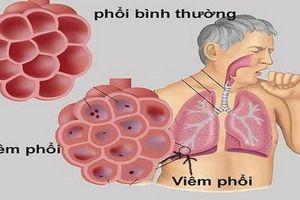Những bệnh dễ gặp ở phổi và lời khuyên phòng bệnh từ bác sĩ
