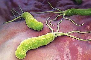 Hiểu và điều trị đúng vi khuẩn HP để phòng ngừa các biến chứng