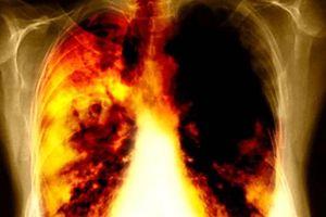 Hơn 23.000 người tử vong vì ung thư phổi, 90% liên quan đến thuốc lá