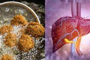 4 món ăn gây hại gan hàng đầu được WHO liệt vào 'danh sách đen', người Việt vẫn vô tư ăn mỗi ngày