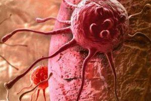 Nhiều người sợ ung thư nhưng không biết rằng ung thư cũng 'sợ' 5 điều này