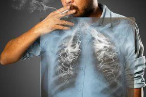 Năm 2020, hơn 23.000 ca tử vong do ung thư phổi