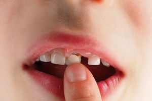 Bé trai tại Trung Quốc nguy kịch sau khi nhổ răng