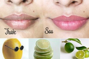 4 công thức trị môi thâm đơn giản nhất
