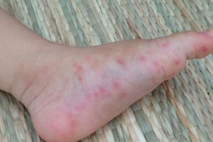 Trẻ bị nổi mụn nước trên da, chuyên gia khuyến cáo gì?