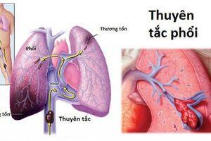 Đối tượng dễ mắc thuyên tắc phổi